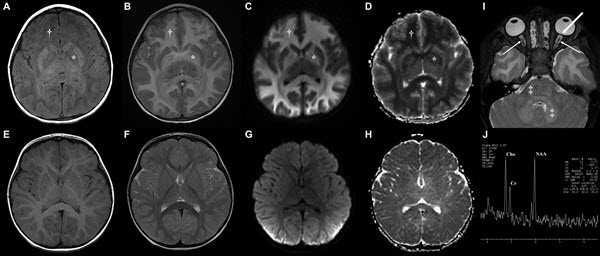 Free full text article: Brain Magnetic Resonance Imaging Findings in Poorly Controlled Homocystinuria