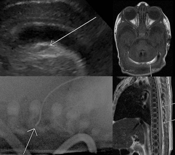 Free full text article: Lipid Infusion Through Malpositioned Central Venous Catheter: Head Ultrasound Features