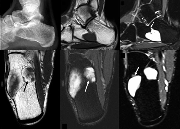 Free full text article: Intraosseous
