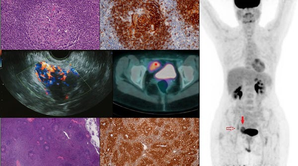 Free full text article: Unicentric or Multicentric Castleman disease?  A case report of a pelvic intraperitoneal mass in a middle aged woman