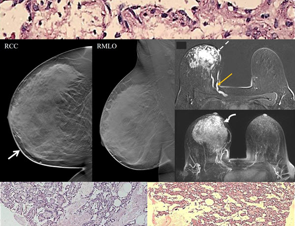 Free full text article: Primary Angiosarcoma Of the Breast: A Case Report
