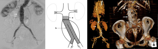 Free full text article: Utility of aortic cuffs in converting initially ineligible patients due to unfavorable neck anatomy into successful candidates for endovascular aortic aneurysm repair: A Case Series