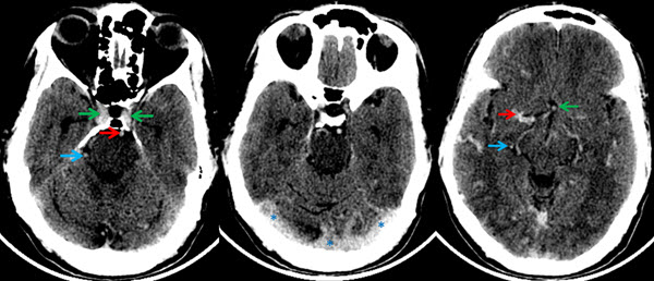 Free full text article: Non-Enhanced CT Mimicking Contrast Enhanced CT - A Case Report on Polycythemia