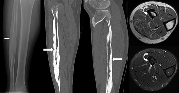 Melorheostosis of The Leg: A Case Report