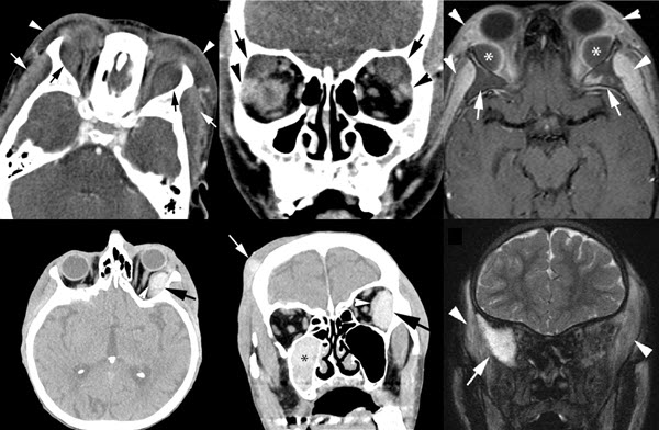 Free full text article: Subperiosteal Hematoma of the Orbit:  A Variety of Presentations
