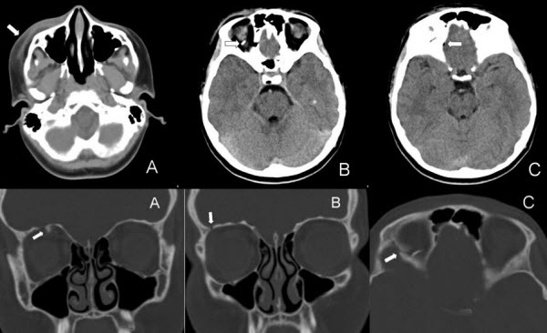 Orbital Roof Blow-in Fracture: A Case Report and Review