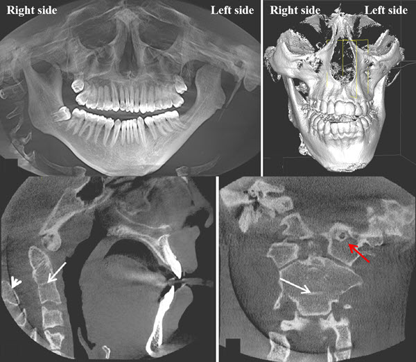 Free full text article: Hemifacial microsomia: skeletal abnormalities evaluation using CBCT (case report)