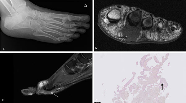 Free full text article: Adventitious bursitis in the plantar fat pad of forefoot presenting as a tumoral mass