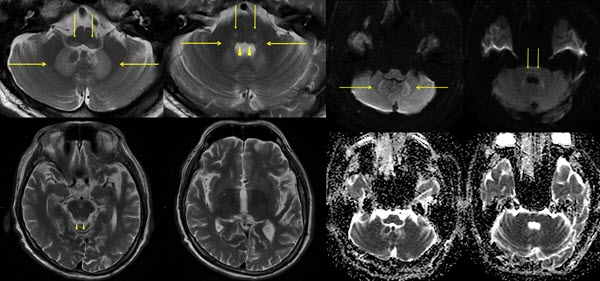 Free full text article: Metronidazole induced encephalopathy: case report and discussion on the differential diagnoses, in particular, Wernicke`s encephalopathy