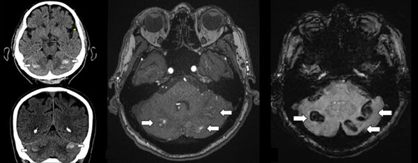 Free full text article: Remote cerebellar hemorrhage as a  complication of lumbar spine surgery