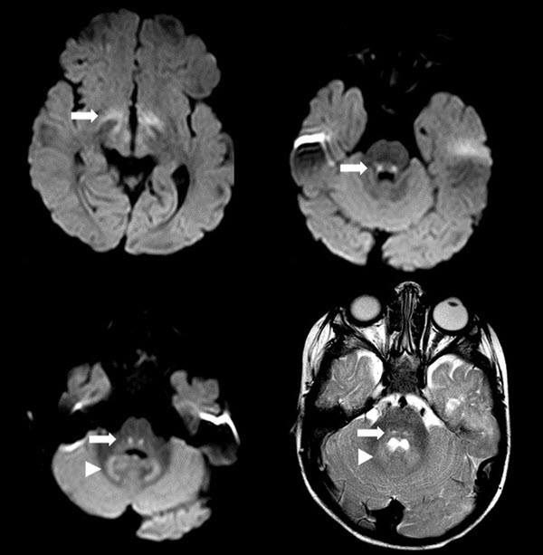 Free full text article: Vigabatrin-associated Reversible MRI Abnormalities in an Infant with Tuberous Sclerosis