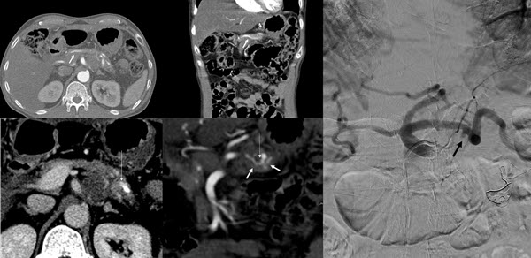 Free full text article: Hemosuccus pancreatitis  due to a ruptured splenic artery pseudoaneurysm - diagnosis and endovascular management