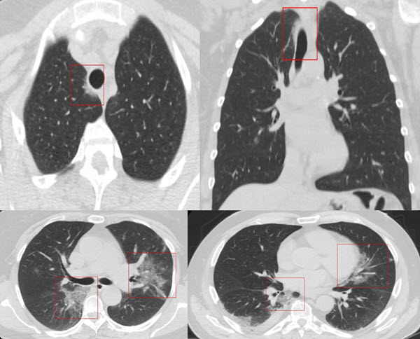 Free full text article: Involvement of the Mediastinal Subpleural Pulmonary Parenchyma on Chest CT in COVID-19 patients:  A Case Series