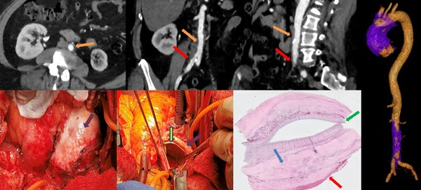 Free full text article: IgG4 aortitis of the ascending thoracic aorta:  A case report and literature review