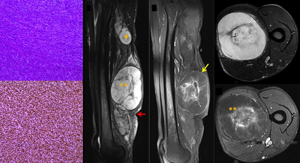 Free full text article: Malignant transformation in a sciatic plexiform neurofibroma in Neurofibromatosis Type 1  - imaging features that aid diagnosis