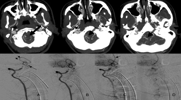 Free full text article: Vascular anomaly at the craniocervical junction presenting with sub arachnoid hemorrhage: Dilemma in Imaging Diagnosis, Endovascular Management and Complications