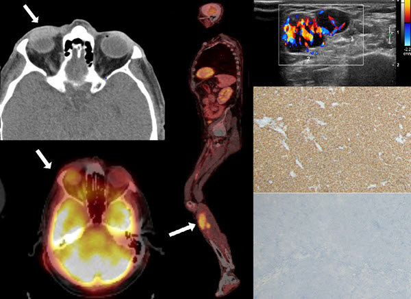 Free full text article: The use of whole-body fluorine-18-fluorodeoxyglucose positron emission tomography integrated with computed tomography for accurate staging and surveillance in the case of mucosa-associated lymphoid tissue