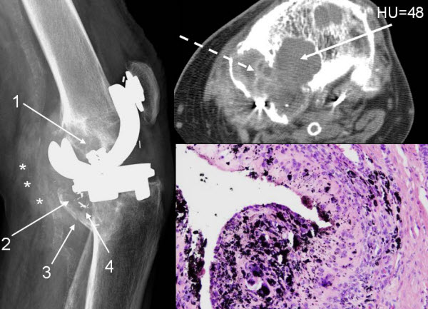 Free full text article: Metallosis and Metal-Induced Synovitis Following Total Knee Arthroplasty: Review of Radiographic and CT Findings