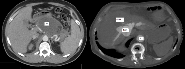 Free full text article: A Tender Pulsatile Epigastric Mass is NOT Always an Abdominal Aortic Aneurysm: A Case Report and Review of Literature