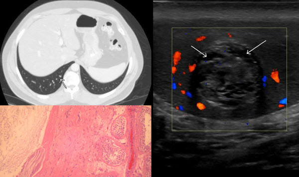 Free full text article: Case report of a testicular epidermoid cyst and review of its typical sonographic features