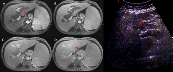 Free full text article: CT and MR findings in extramedullary haematopoiesis with biliary system encasement: a case report