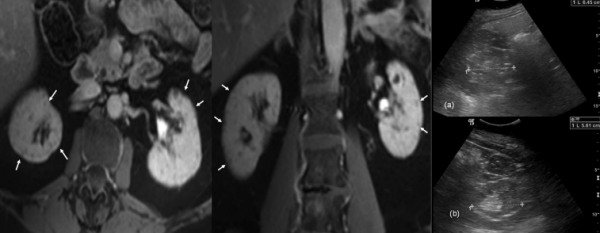MRI Findings in Chronic Lithium Nephropathy: A Case Report