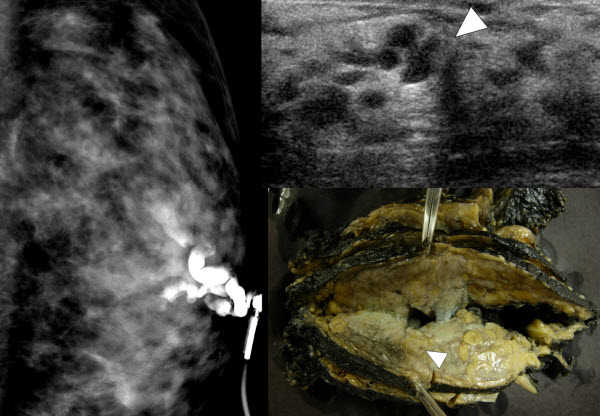 Mammary Duct Ectasia in a Man with Liver Disease, End Stage Renal Failure, and Adjacent Arteriovenous Fistula