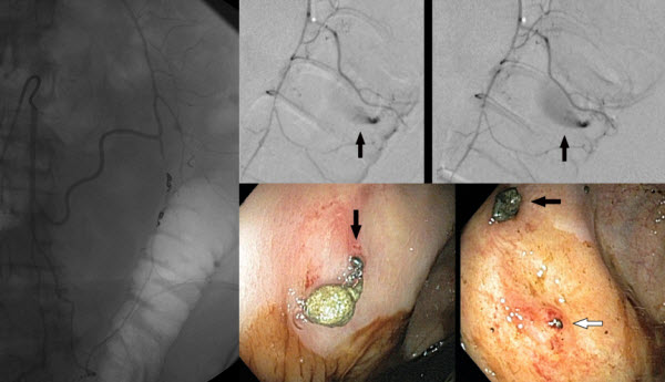 Transmural Coil Extrusion After Embolization for Colonic Hemorrhage
