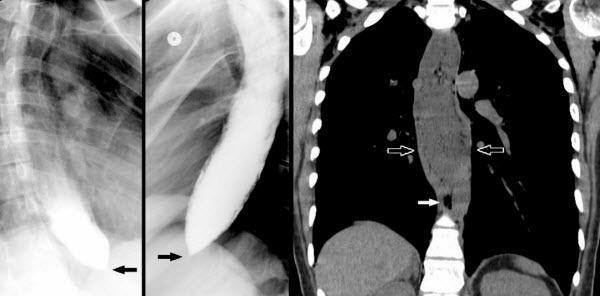 Spontaneous Pneumomediastinum Due to Achalasia: An Unusual but Benign Cause