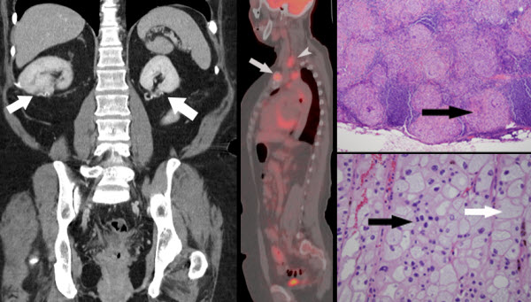 Free full text article: Co-existing Sarcoidosis Confounds the Staging of Bilateral Renal Cell Carcinoma