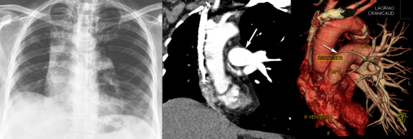 Free full text article: Incidentally detected unilateral pulmonary artery agenesis with pulmonary hypoplasia in a 67 year old woman