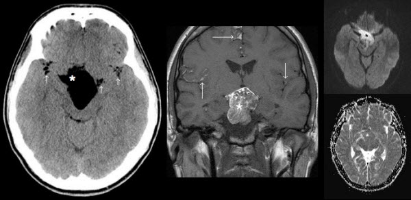 Free full text article: Ruptured intracranial dermoid cyst manifesting as new onset seizure: a case report