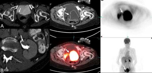 Extraperitoneal Urinary Bladder Perforation Detected by FDG PET/CT