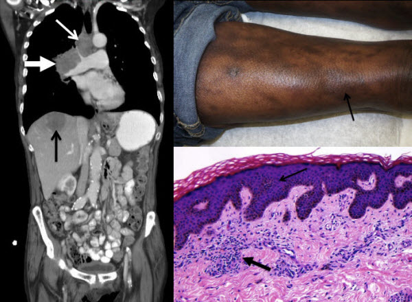 Free full text article: Acrokeratosis paraneoplastica (Bazex syndrome): Report of a case associated with small cell lung carcinoma and review of the literature