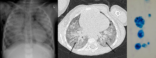 Free full text article: Case Report of Idiopathic Pulmonary Haemosiderosis in a Child with recurrent chest infections