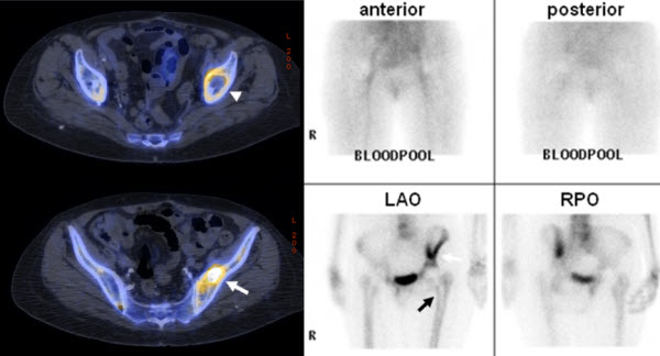 Free full text article: Particle Disease on Fluoride-18 (NaF) PET/CT imaging