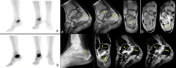 Free full text article: Spontaneous talar and calcaneal fracture in rheumatoid arthritis: a case report