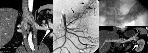 Free full text article: Pancreatic Arteriovenous Malformation: a case report and literature review