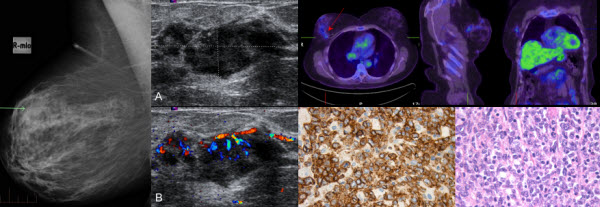 Free full text article: Primary Breast Lymphoma: A Rare Entity