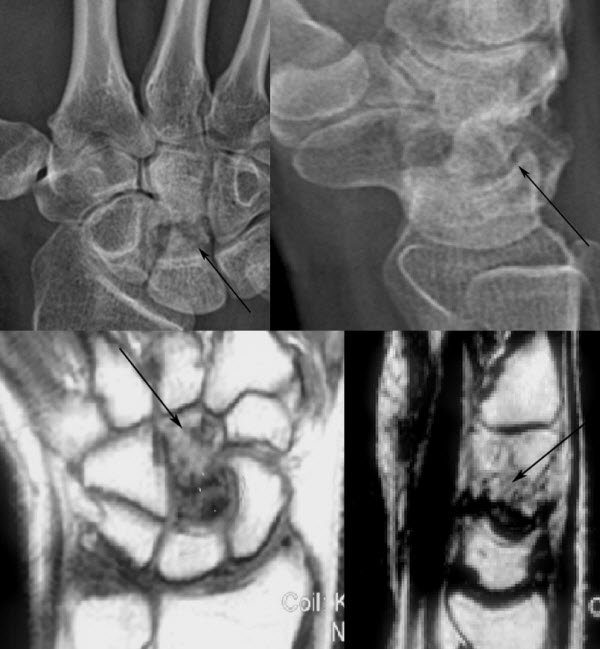 Free full text article: Avascular Necrosis of the Capitate