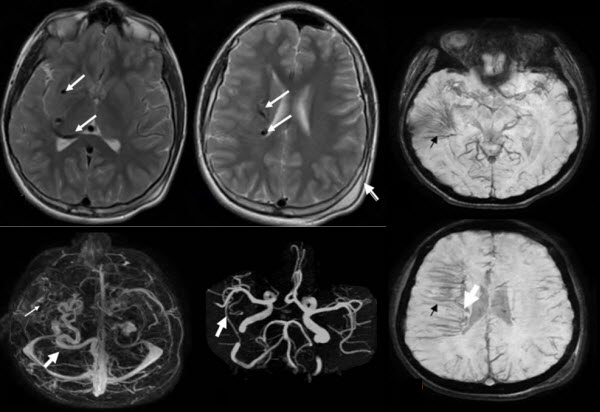 Free full text article: Pediatric Holohemispheric Developmental Venous Anomaly: Definitive characterization by 3D Susceptibility Weighted Magnetic Resonance Angiography