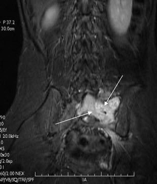 Free full text article: Sacral Ewing`s Sarcoma and Challenges in it`s Diagnosis on MRI