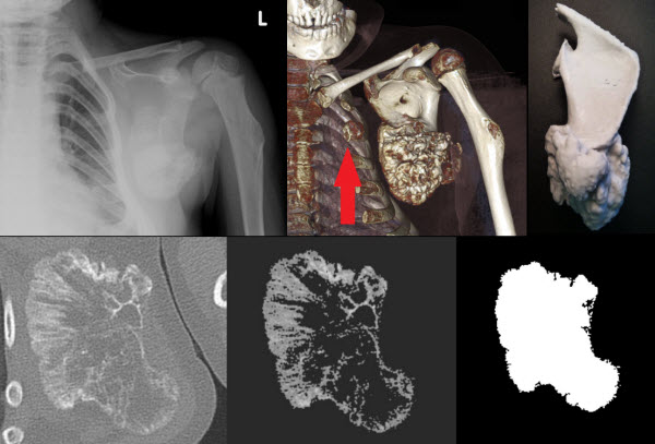 Free full text article: 3-D printout of a DICOM file to aid surgical planning in a 6 year old patient with a large scapular osteochondroma complicating congenital diaphyseal aclasia