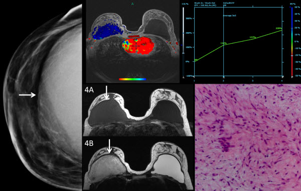 Free full text article: Breast Fibromatosis Response to Tamoxifen:  Dynamic MRI Findings and Review of the Current Treatment Options