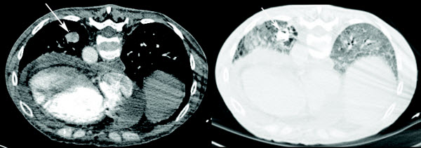 Free full text article: Percutaneous embolization of an incidentally diagnosed pulmonary aneurysm in a scleroderma patient