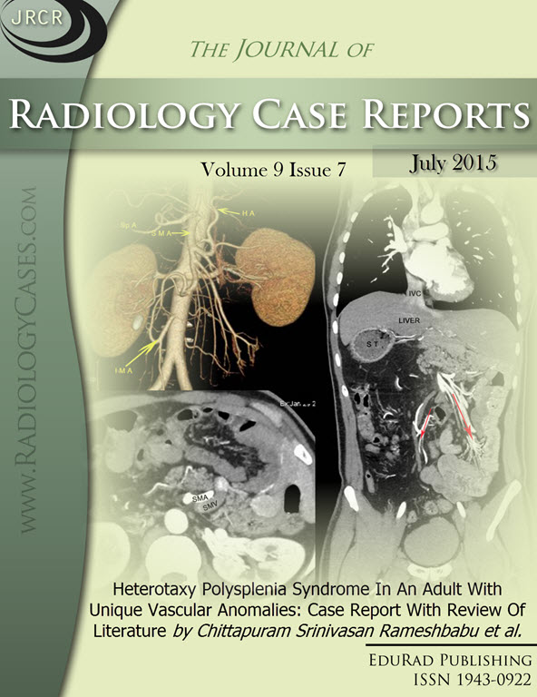 Journal of Radiology Case Reports July 2015 issue - Cover page: Heterotaxy Polysplenia Syndrome In An Adult With Unique Vascular Anomalies: Case Report With Review Of Literature by Chittapuram Srinivasan Rameshbabu et al.