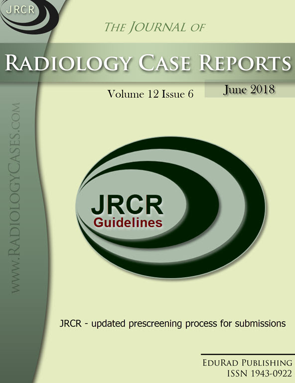 Journal of Radiology Case Reports June 2018 issue - Cover page: JRCR - updated prescreening process for submissions