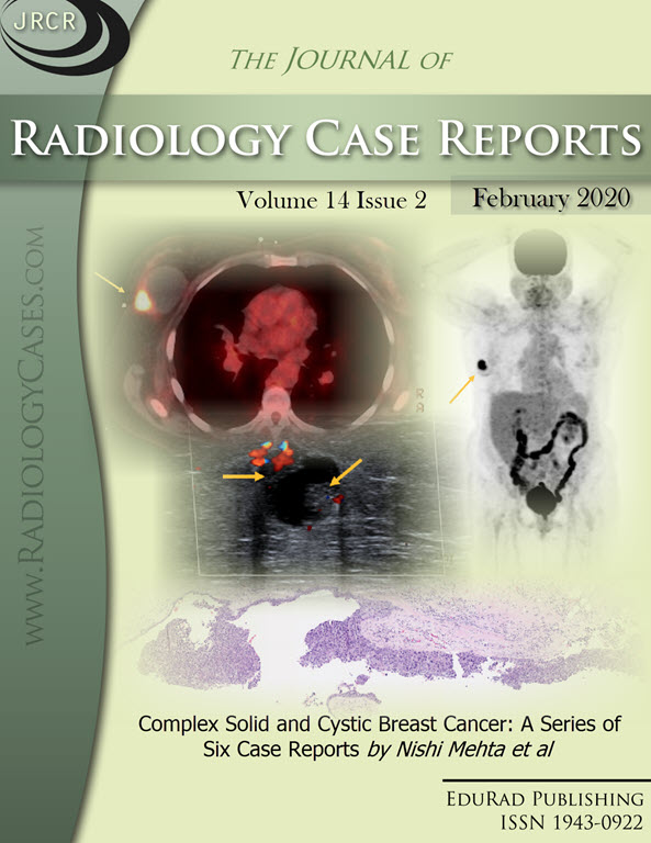 Journal of Radiology Case Reports February 2020 issue - Cover page: Complex Solid and Cystic Breast Cancer: A Series of Six Case Reports by Nishi Mehta et al
