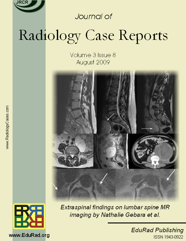 Review article: Extraspinal findings on lumbar spine MR imaging by Nathalie Gebara et al.