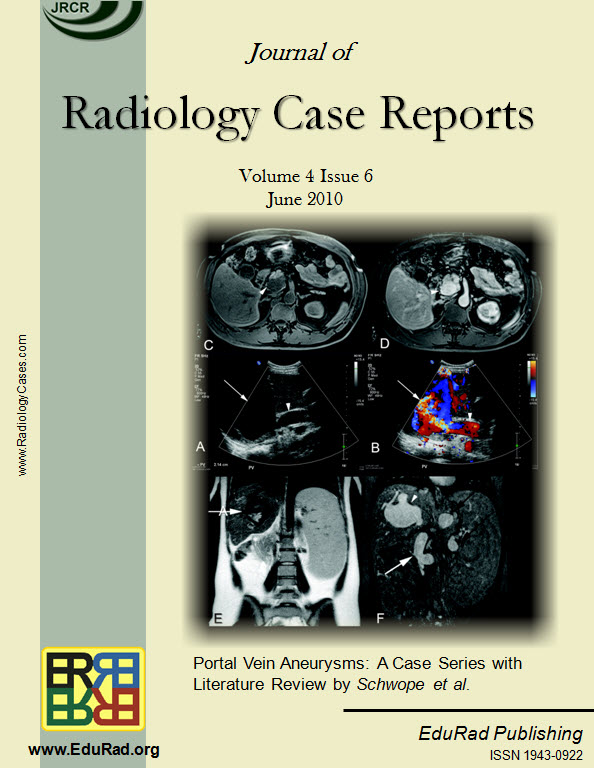 Journal of Radiology Case Reports June 2010 issue cover page: Portal Vein Aneurysms: A Case Series with Literature Review by Schwope et al.